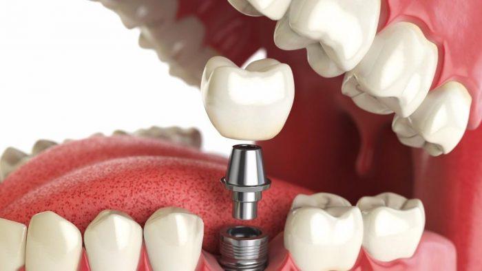 implantatsiya-zubov-e1549645159155